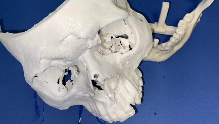 Torino: ricostruzione volto 3D con pianificazione chirurgica virtuale