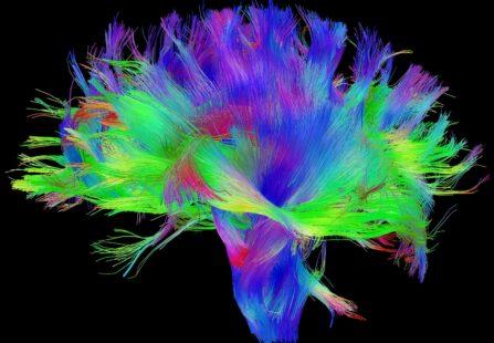 Risonanza magnetica con DTI: l'importante strumento per il neuroimaging