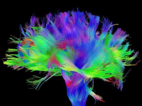 Risonanza magnetica con DTI: l'importante strumento per il neuroimaging. Credits: humanconnectomeproject.org