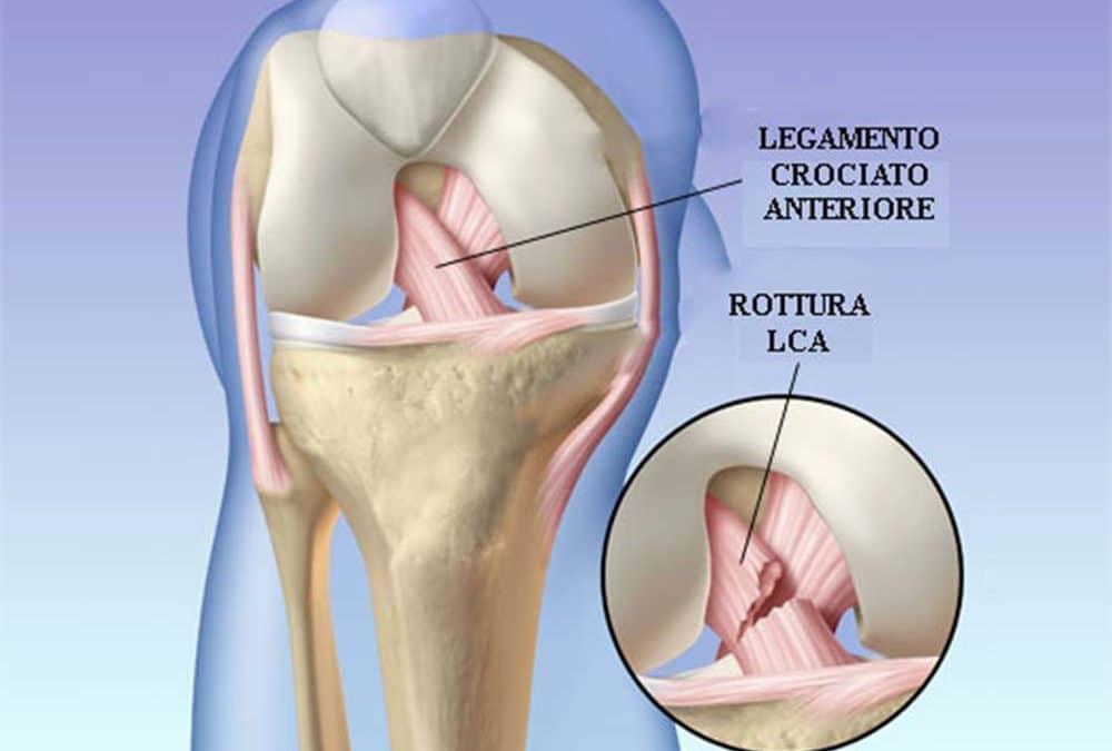 Rottura del legamento crociato anteriore