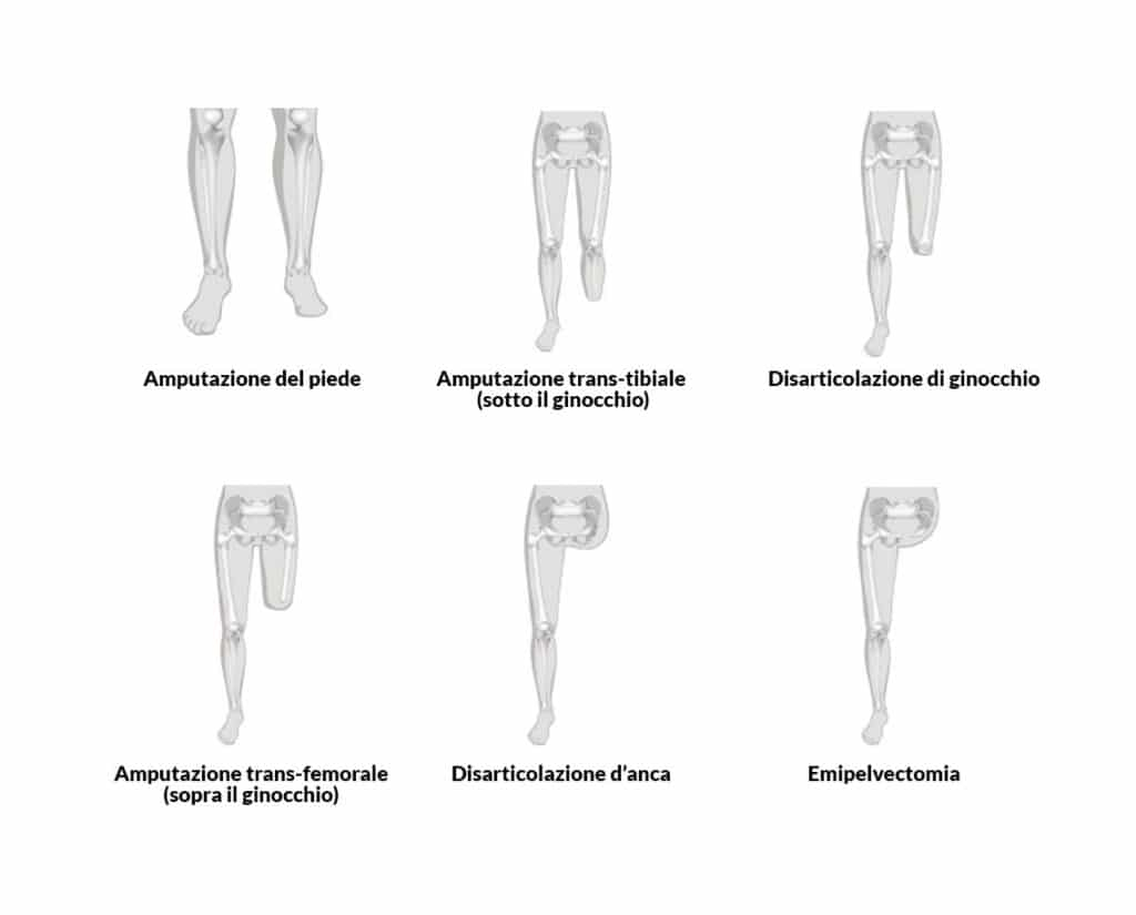 Feedback sensoriale integrato nelle protesi: perché può aiutare. Credits: RO.GA. Centro ortopedico.