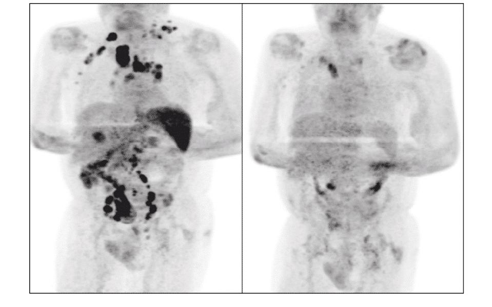 linfoma di hodgkin covid