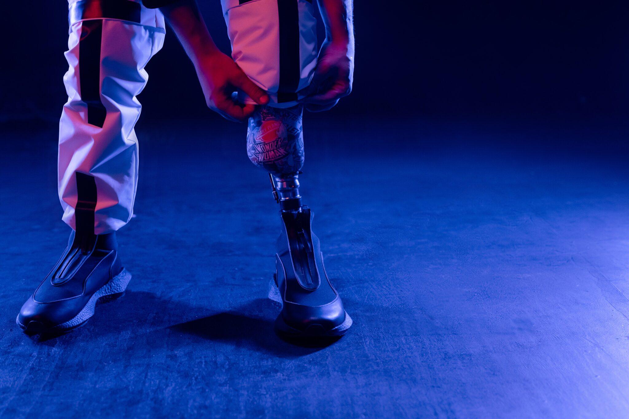 Feedback sensoriale integrato nelle protesi: perché può aiutare.