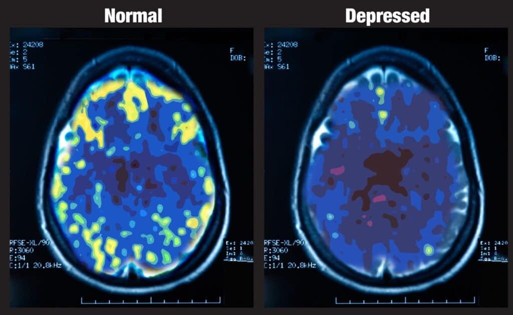 Le differenze nelle cellule cerebrali delle persone con depressione. Credits: Mark George, NIMH 1993
