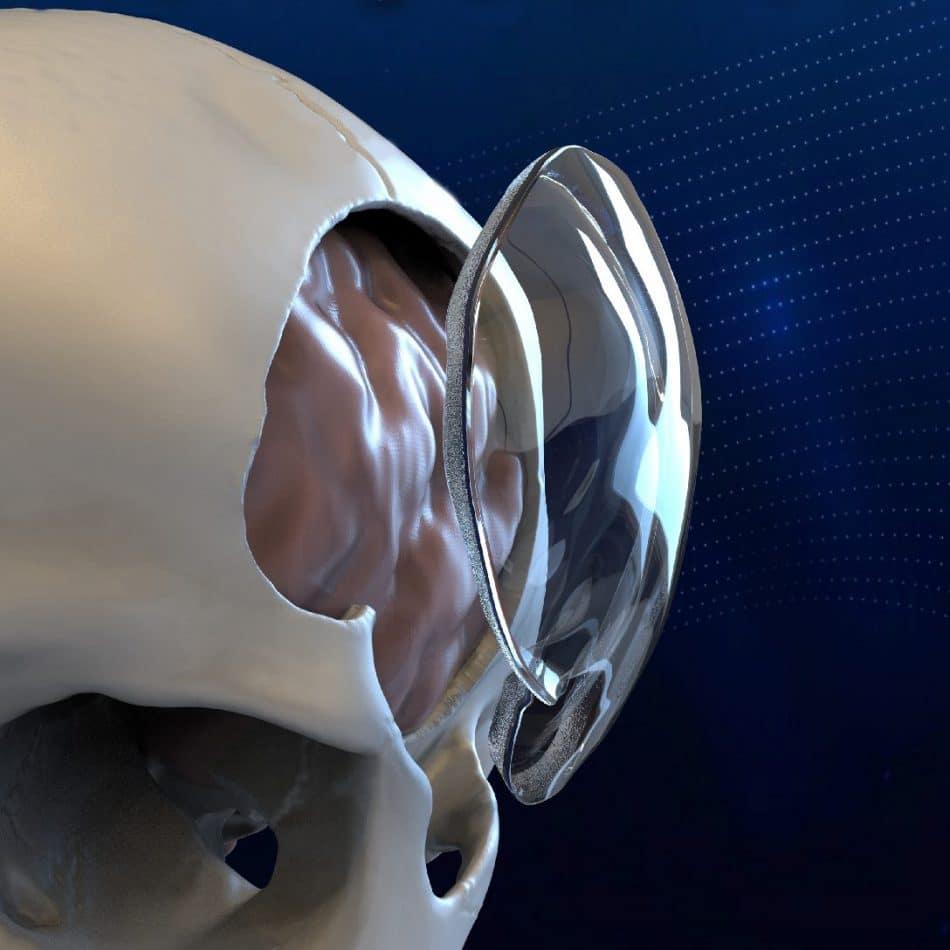 ClearFit, l'impianto che permette l'uso di ultrasuoni per l'imaging cerebrale. Credits: Longeviti