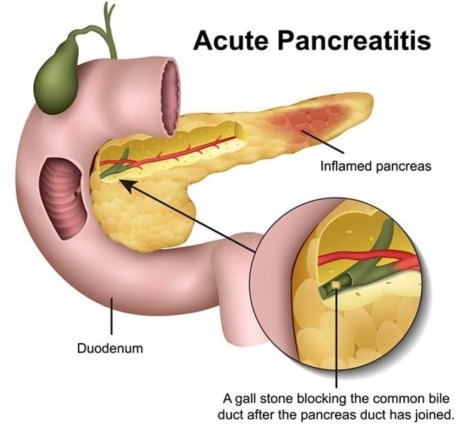 intervento pancreas da vinci