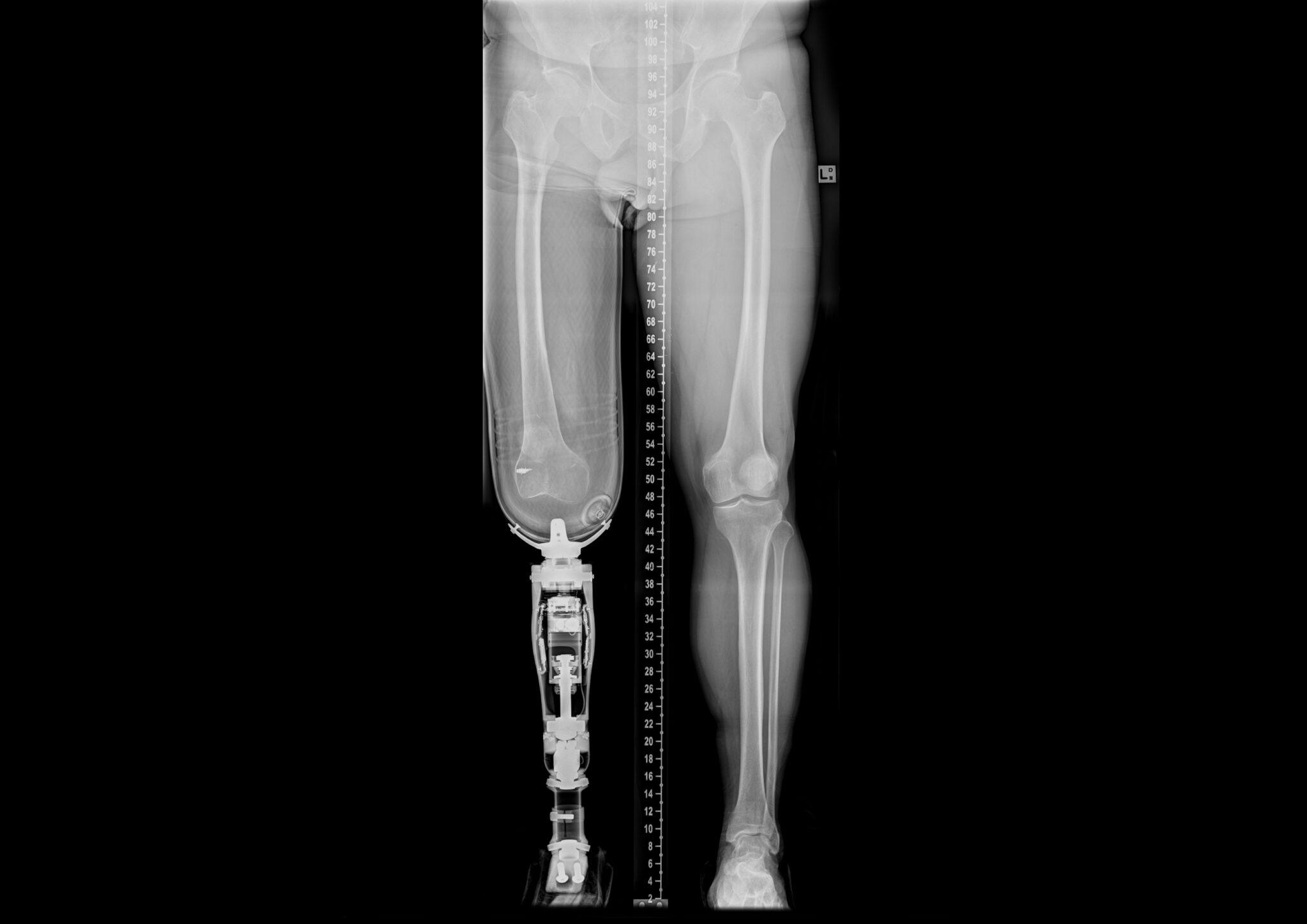 Protesi osteointegrate: quando l'arto artificiale è impiantato nell'osso. Credits: Case courtesy of Assoc Prof Frank Gaillard, Radiopaedia.org, rID: 32534