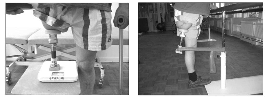 Protesi osteointegrate: quando l'arto artificiale è impiantato nell'osso. Credits: JRRD