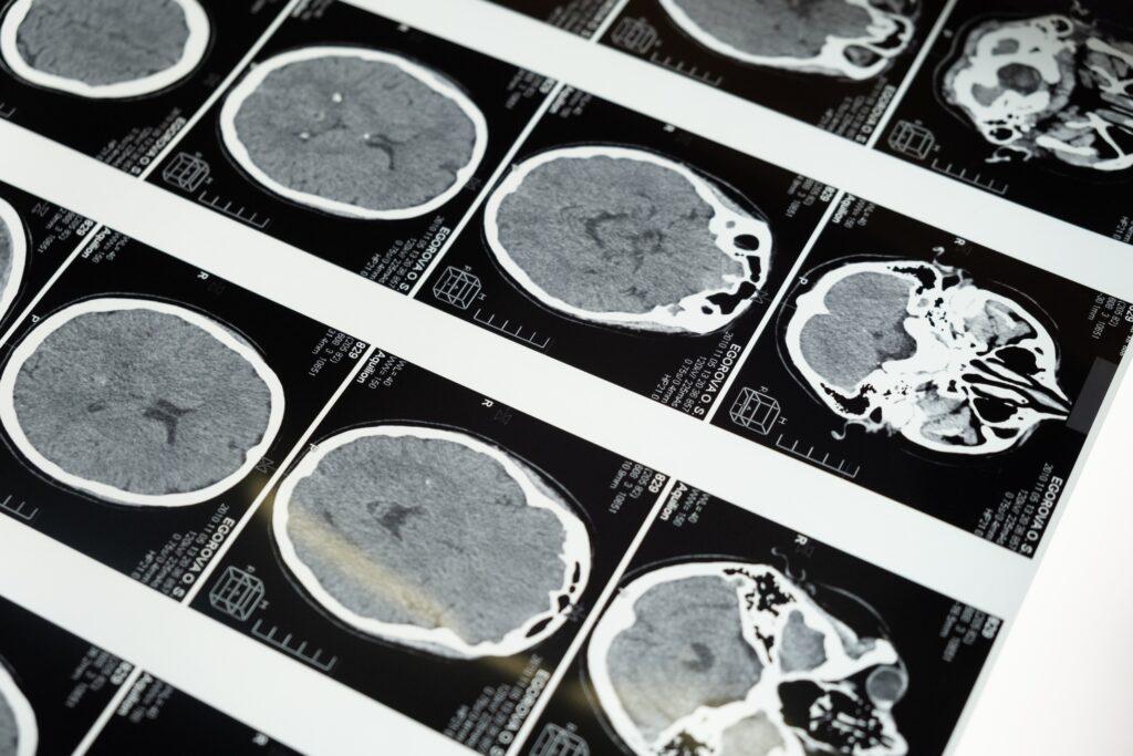 neuroimaging diagnosi epilessia