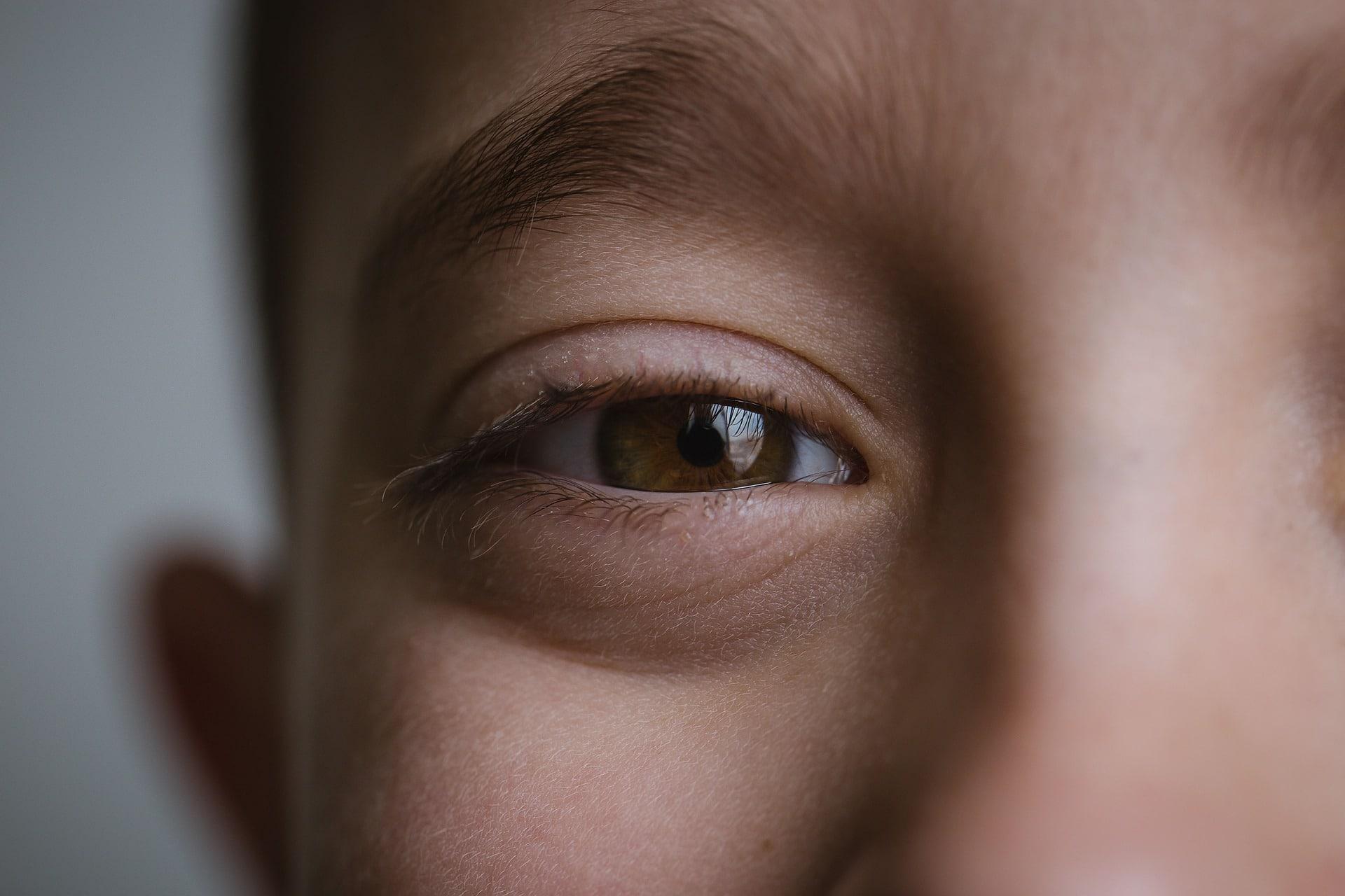 occhio pigro nei bambini