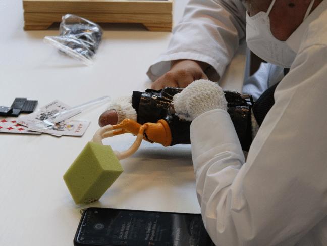 Una protesi mioelettrica con comando vocale ad Alexa