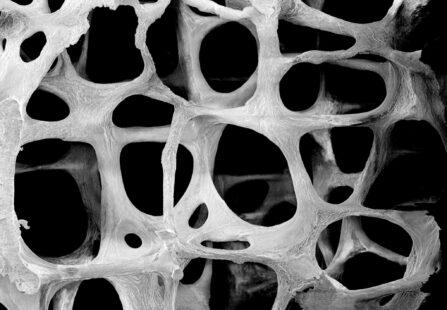 Biomimetica: nuovi materiali per pazienti colpiti da metastasi ossea