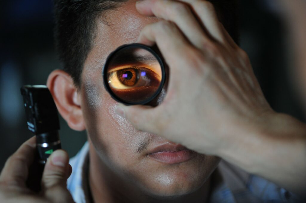 come diagnosticare l'occhio pigro