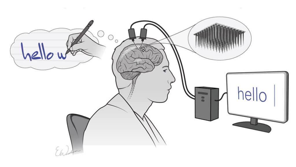 La BCI che legge la scrittura a mano dal cervello dell'uomo paralizzato. Credits: Nature/Erika Woodrum