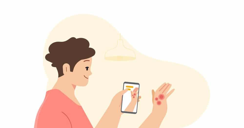 AI di Google per le malattie della pelle