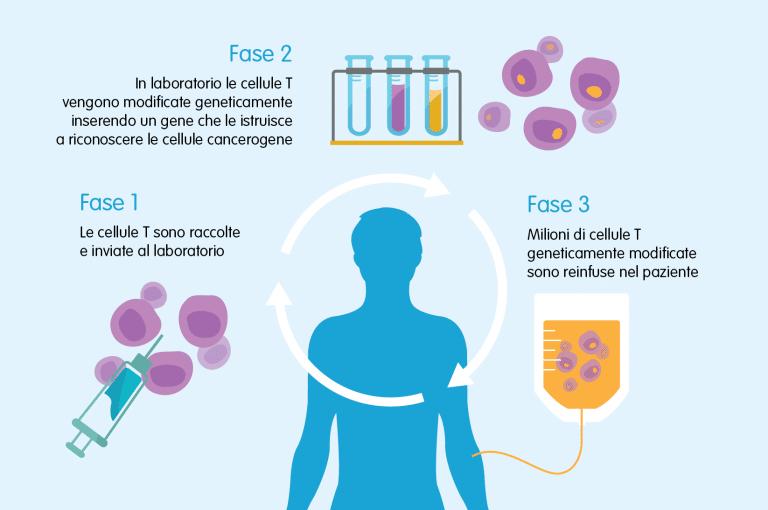 Leucemia: primi tre bambini trattati con successo grazie alla terapia con cellule CAR-T