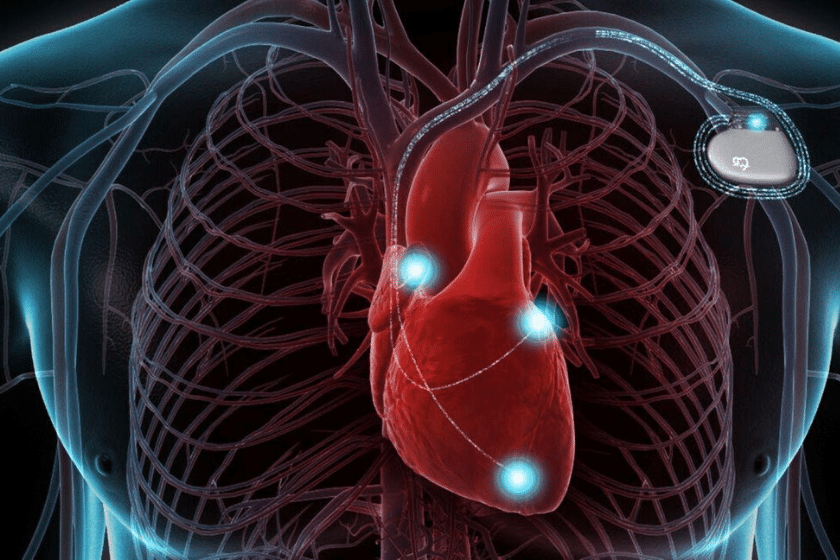eriksen operatore defibrillatore cardiaco
