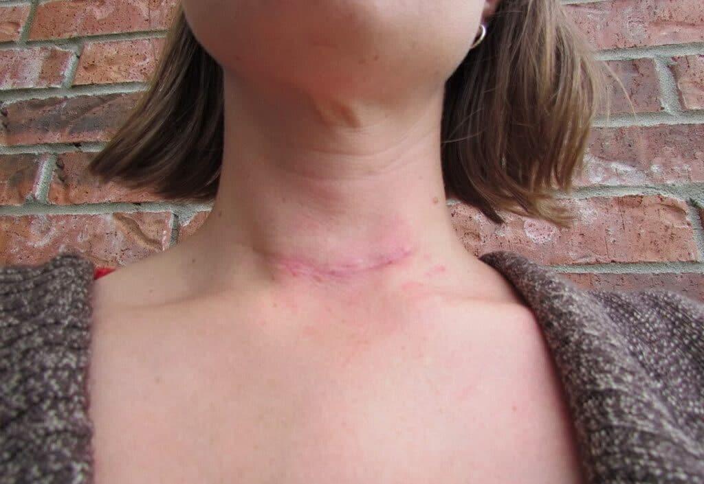tiroidectomia Credits: Medicina Online