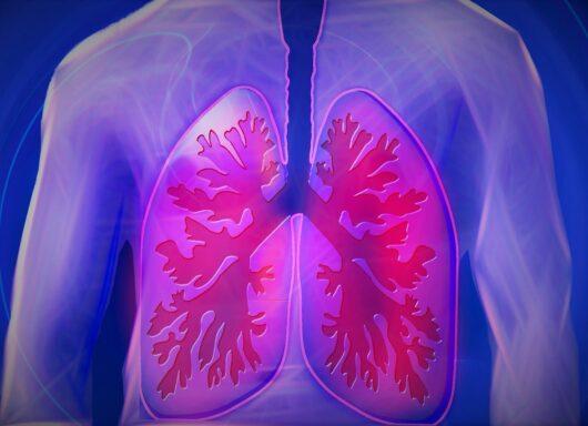 Durvalumab: sopravvivenza senza precedenti per il carcinoma polmonare non resecabile