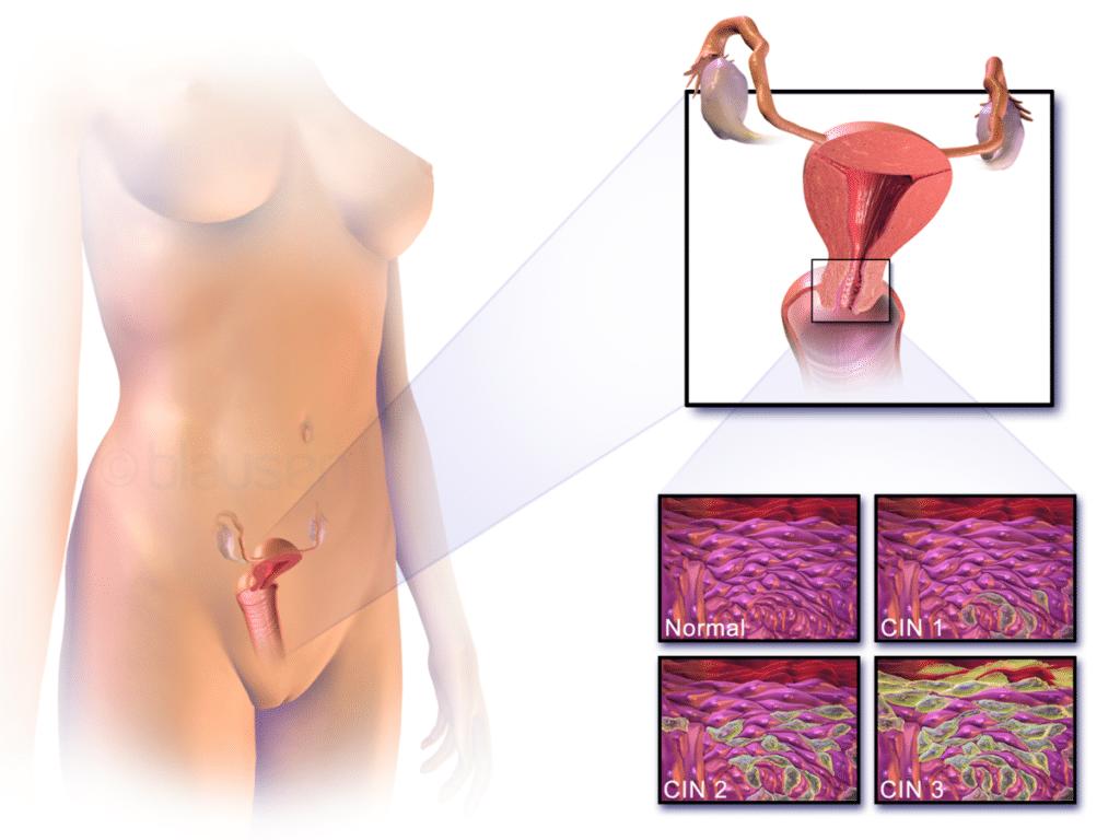 Tumore utero - Ubicazione della cervice ed esempi di epitelio cervicale normale e anormale.