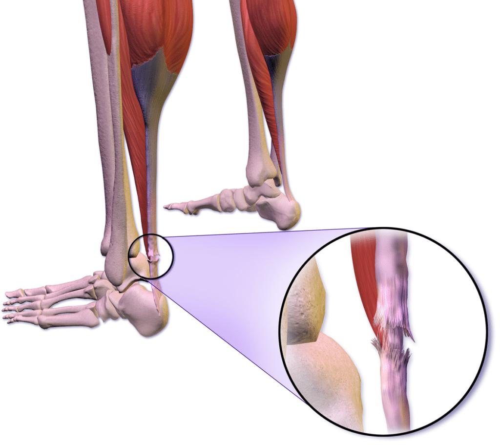 Lesione tendine d'Achille