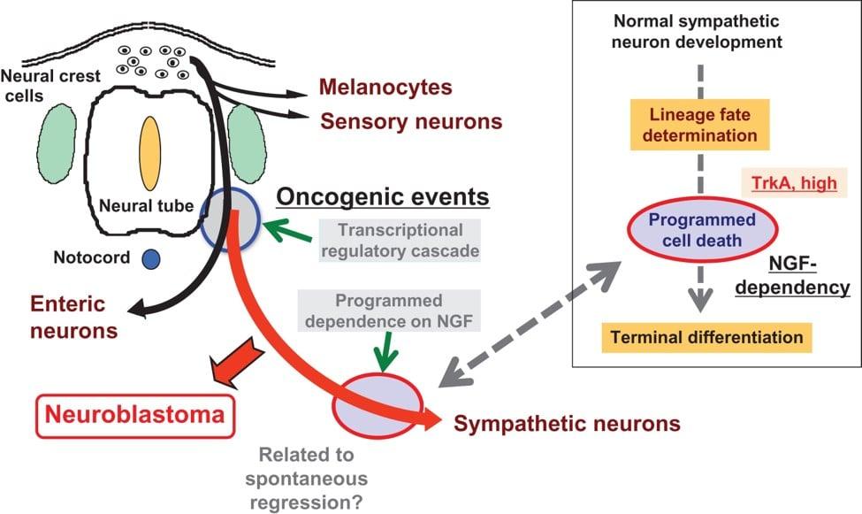 Neuroblastoma: nuove prospettive terapeutiche per uccidere le cellule tumorali