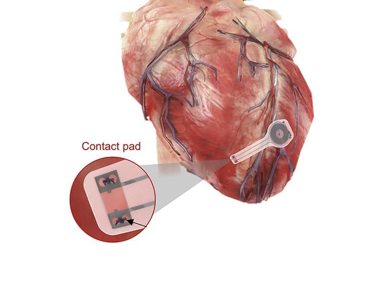 pacemaker temporaneo wireless e senza batteria