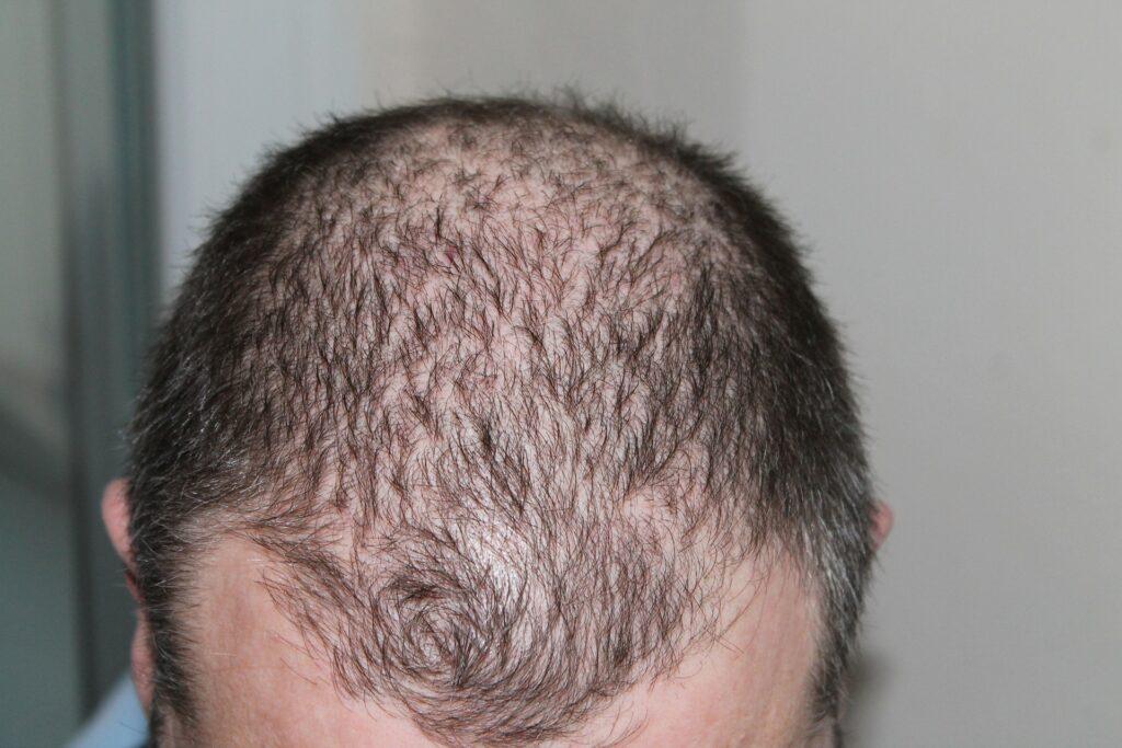 un cerottto per la perdita dei capelli