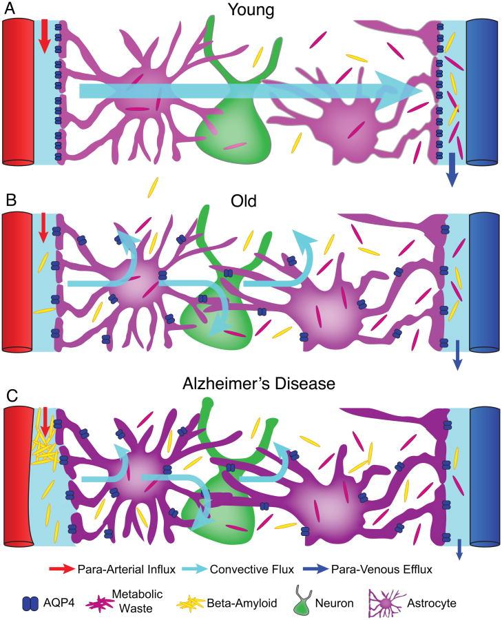 il sistema glinfatico e le malattie neurodegenerative