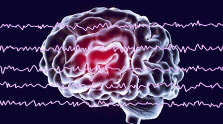 Fastball EEG e Alzheimer: una lotta contro il tempo